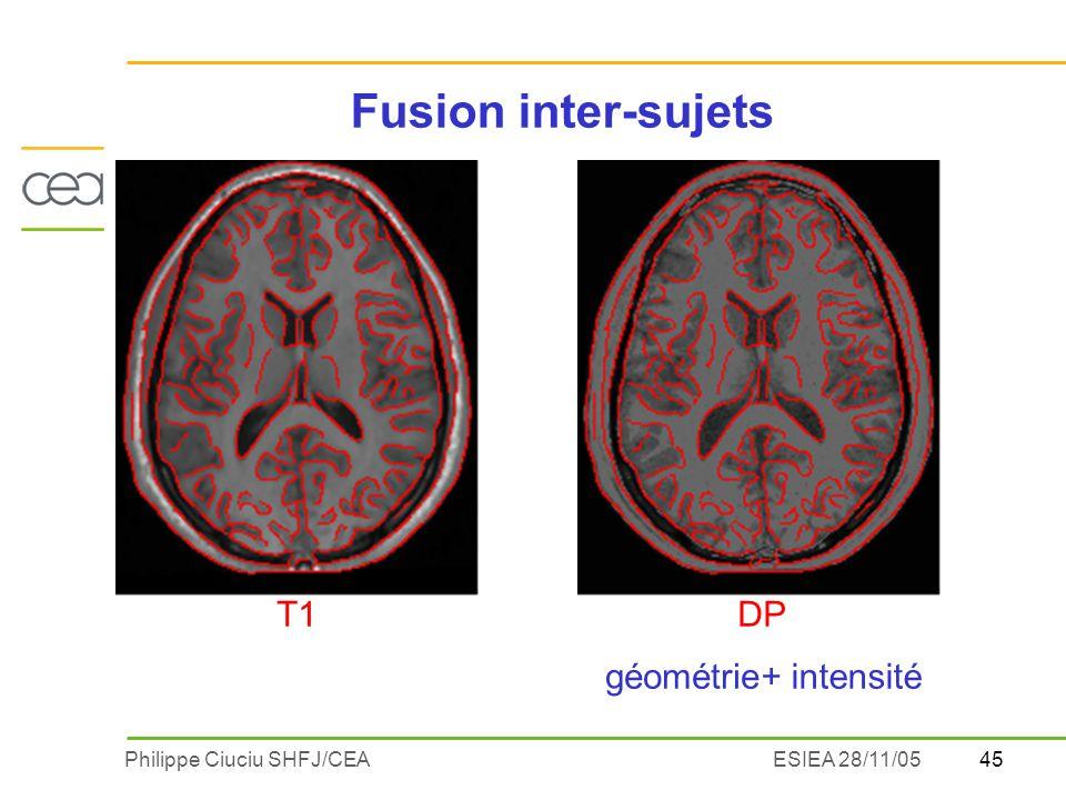 Fusion inter-sujets + intensité géométrie T1 DP ESIEA 28/11/05