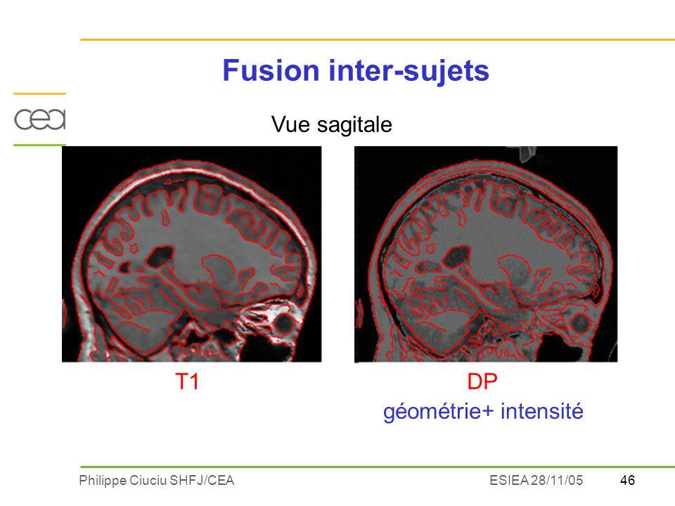 Fusion inter-sujets Vue sagitale + intensité géométrie T1 DP