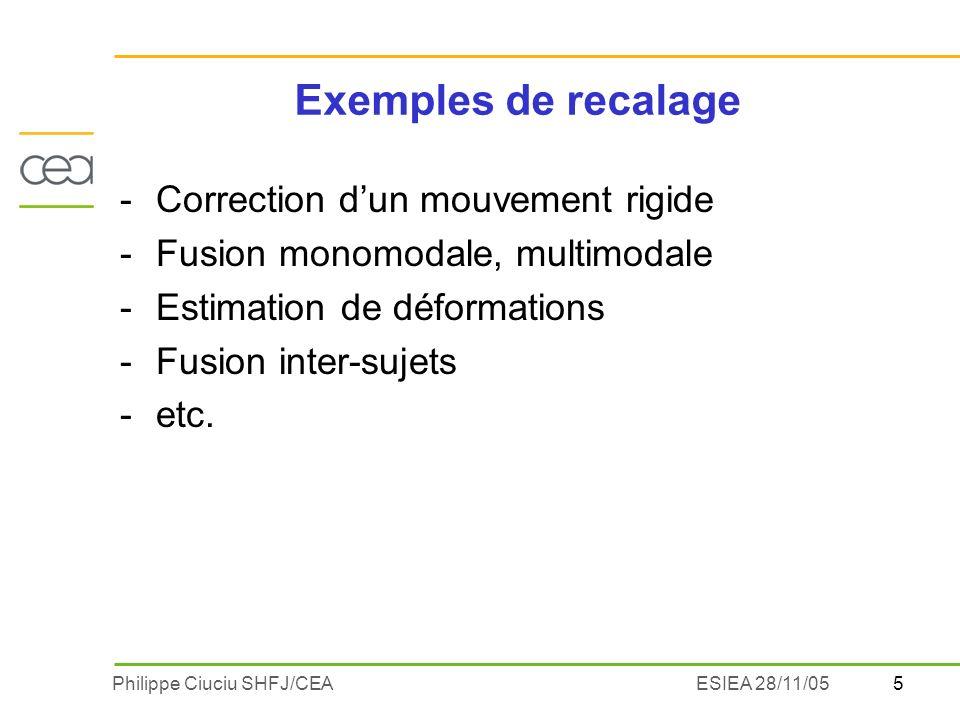 Exemples de recalage Correction d'un mouvement rigide
