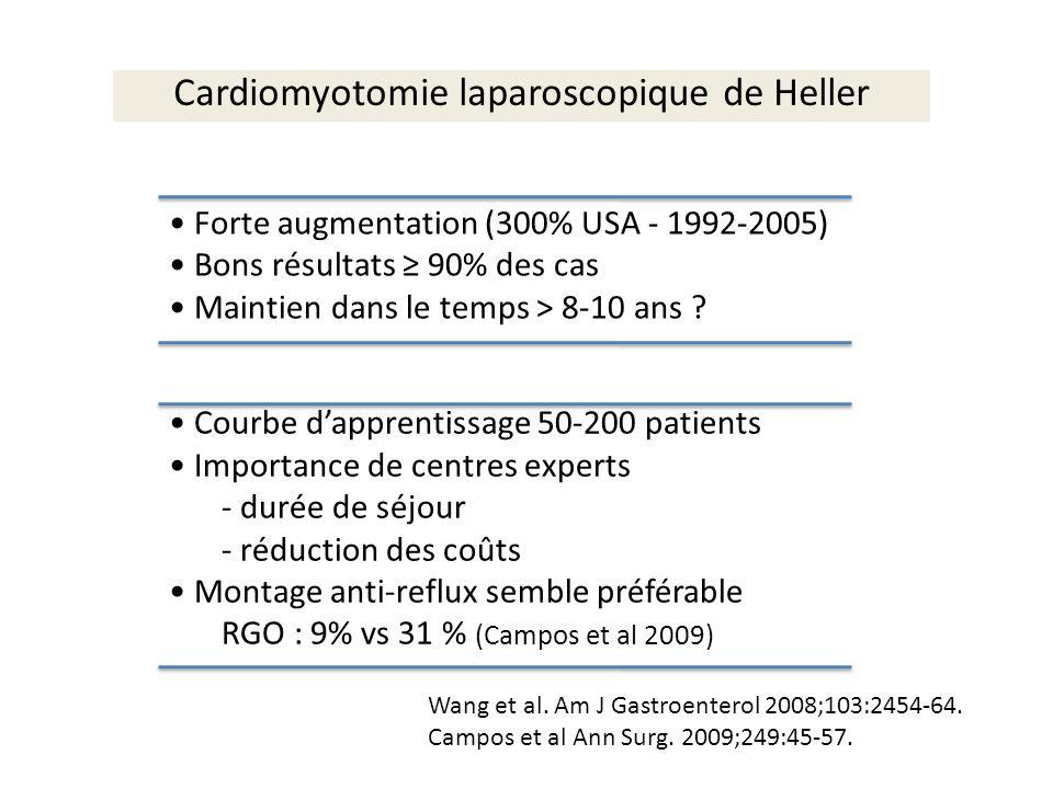 Cardiomyotomie laparoscopique de Heller