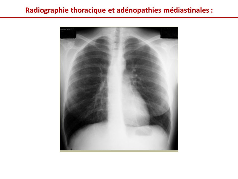 Radiographie thoracique et adénopathies médiastinales :