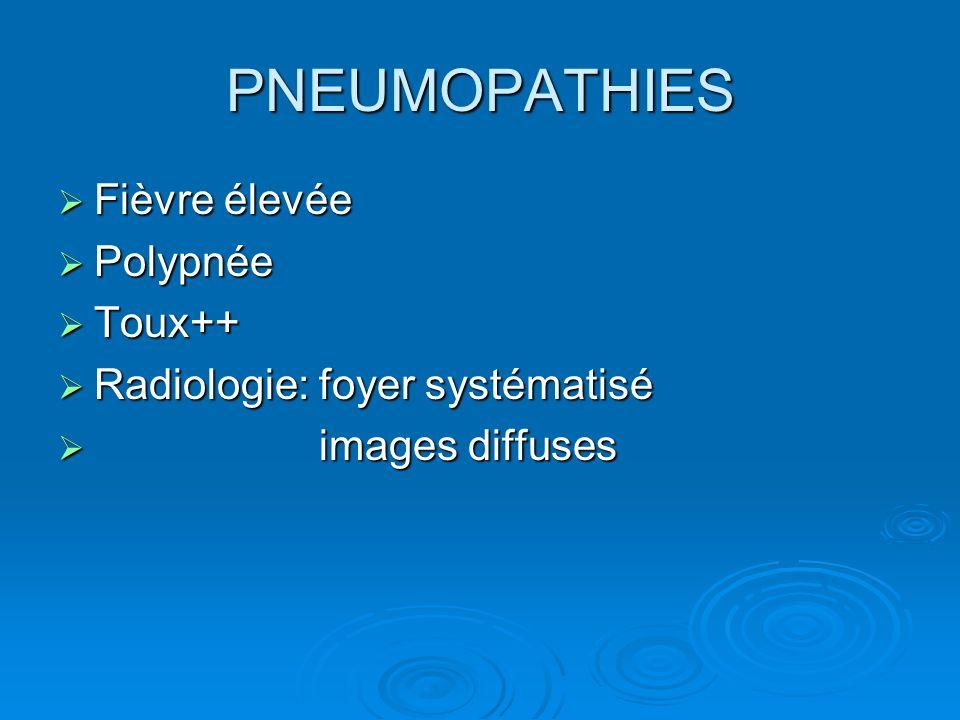 PNEUMOPATHIES Fièvre élevée Polypnée Toux++