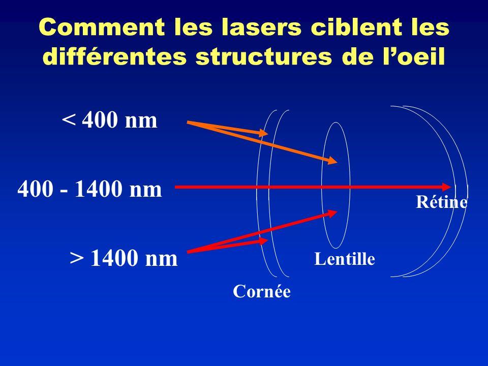 Comment les lasers ciblent les différentes structures de l'oeil