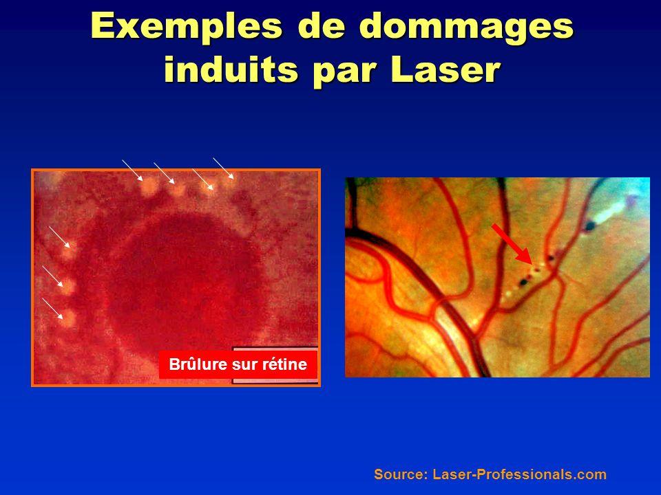 Exemples de dommages induits par Laser