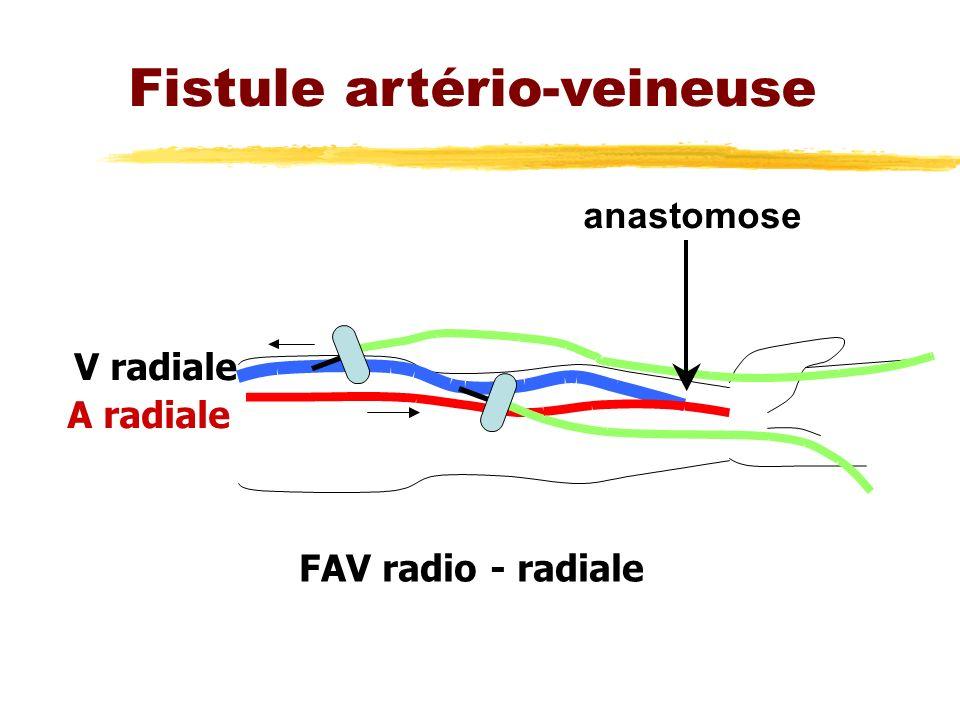 Fistule artério-veineuse