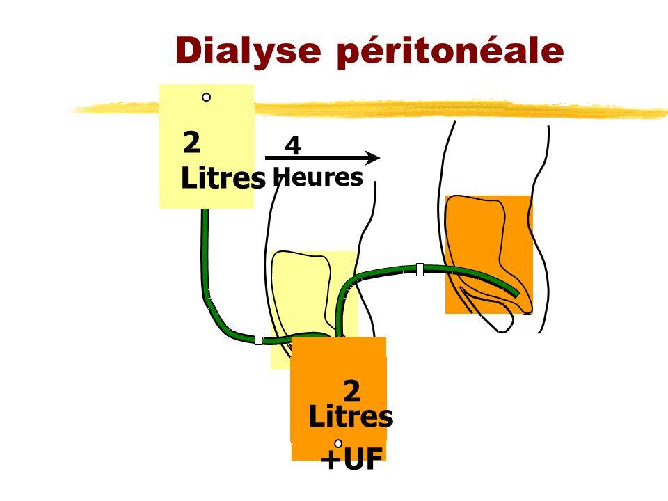 Dialyse péritonéale 2 4 Heures Litres 2 Litres +UF