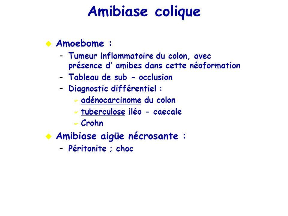 Amibiase colique Amoebome : Amibiase aigüe nécrosante :