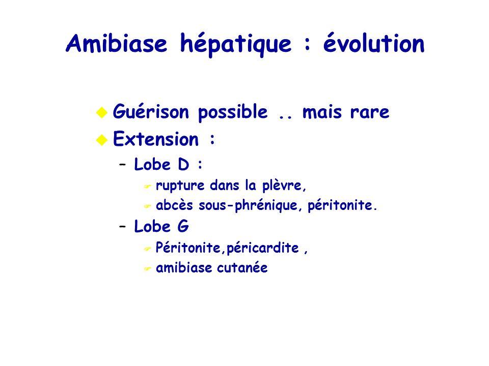Amibiase hépatique : évolution
