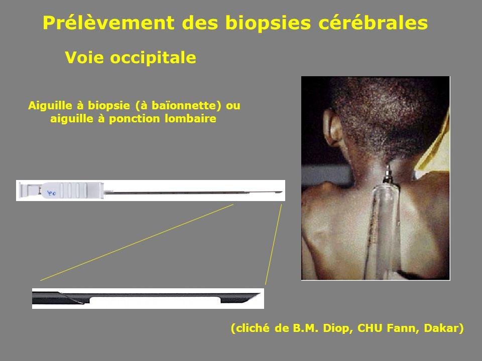 Prélèvement des biopsies cérébrales