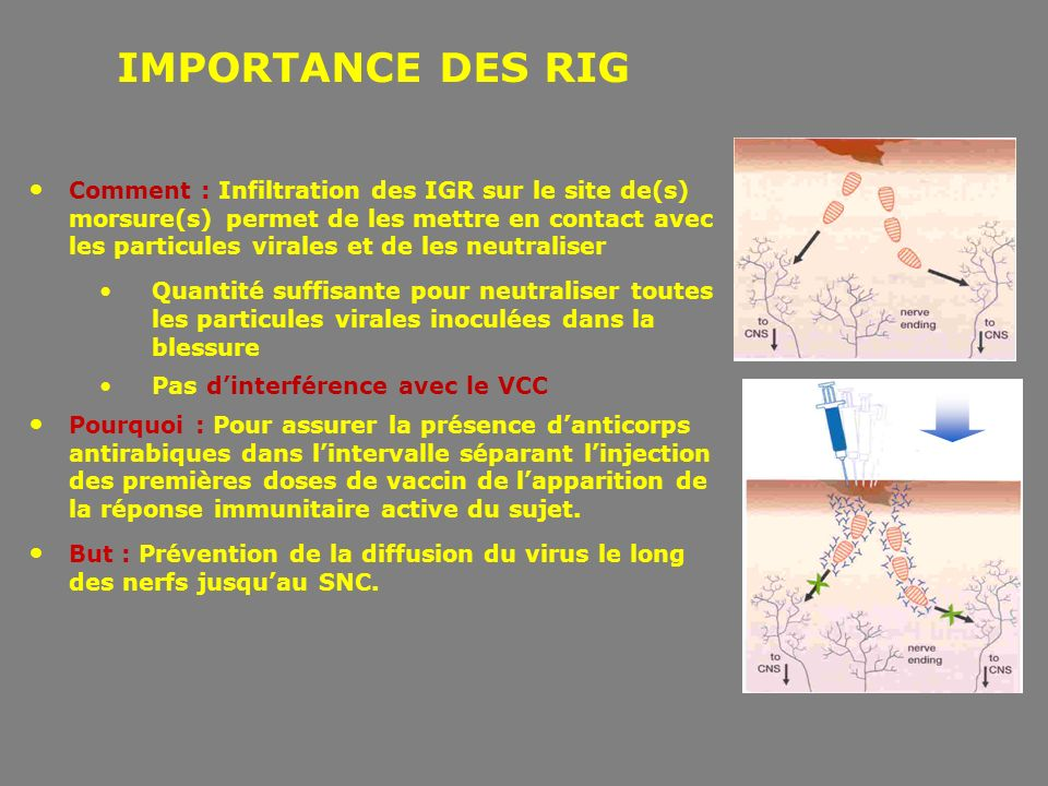 IMPORTANCE DES RIG
