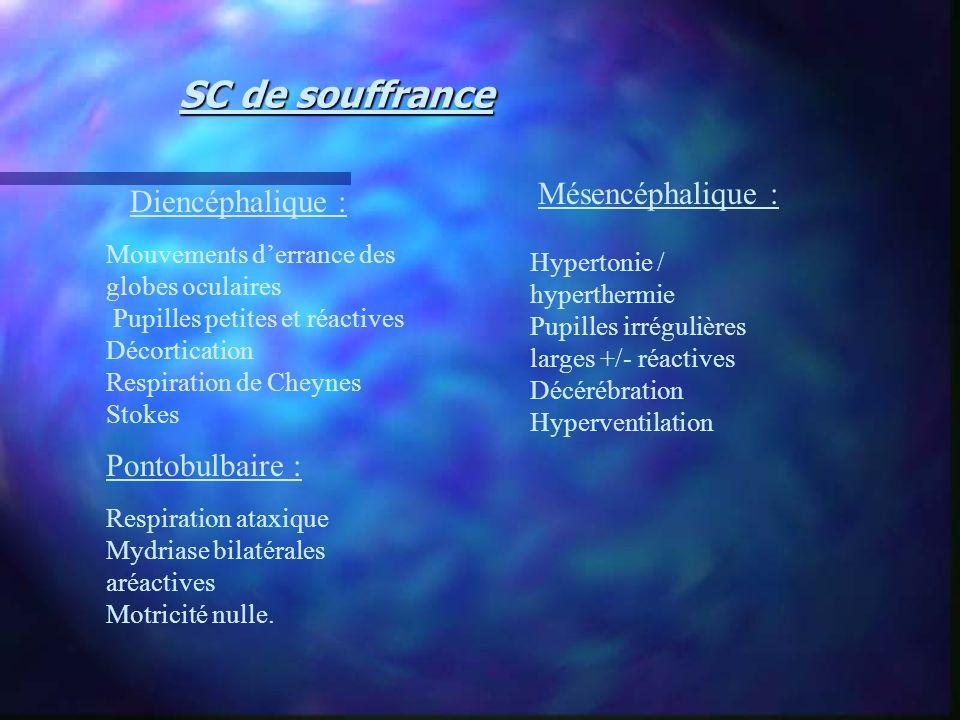 SC de souffrance Mésencéphalique : Diencéphalique : Pontobulbaire :