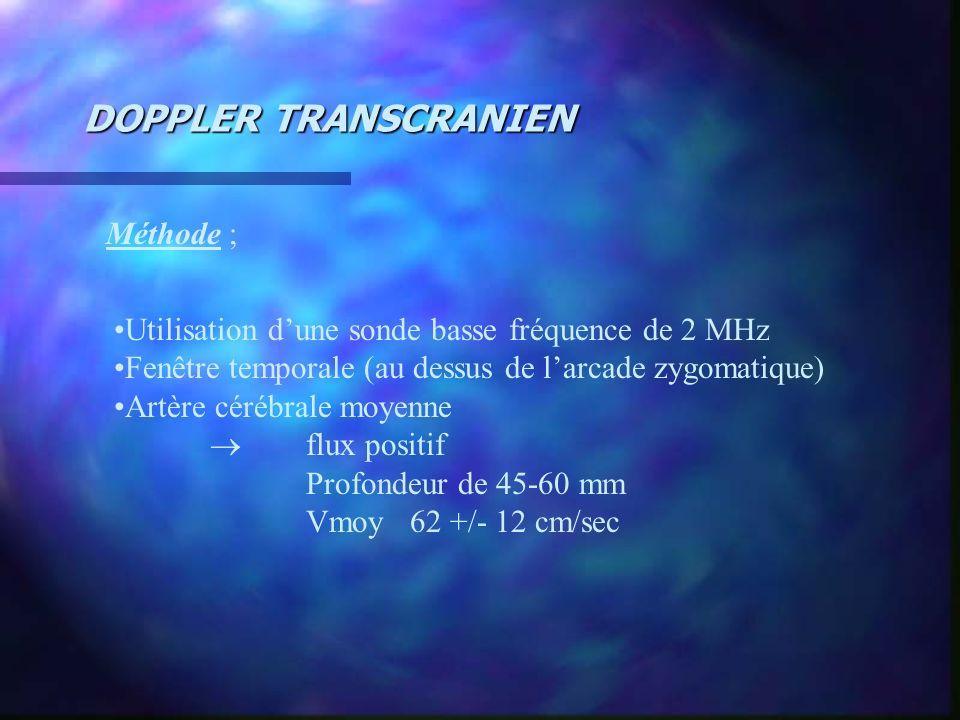 DOPPLER TRANSCRANIEN Méthode ;
