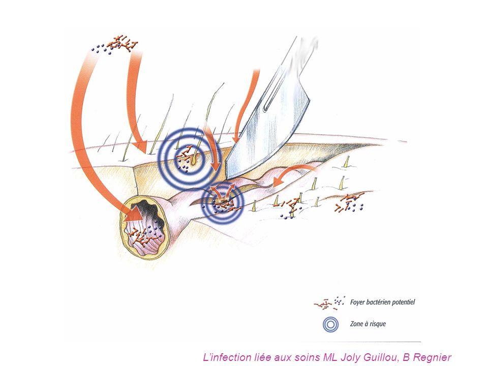 L'infection liée aux soins ML Joly Guillou, B Regnier