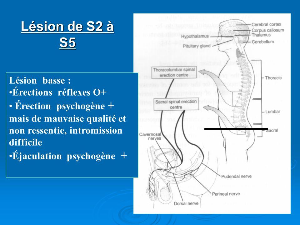 Lésion de S2 à S5 Lésion basse : Érections réflexes O+