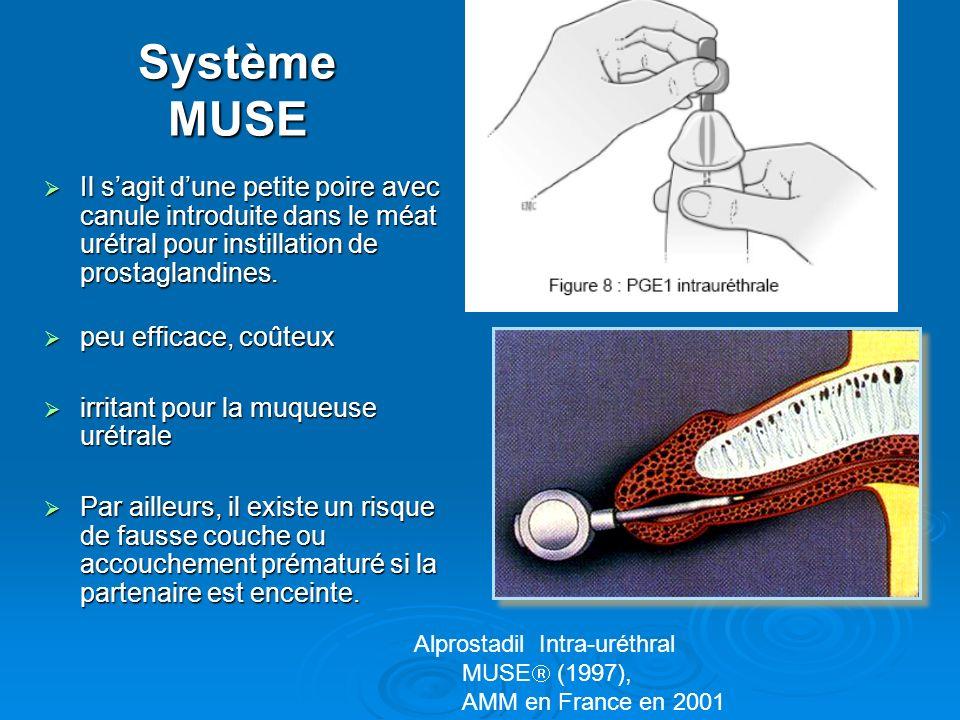 Système MUSE Il s'agit d'une petite poire avec canule introduite dans le méat urétral pour instillation de prostaglandines.