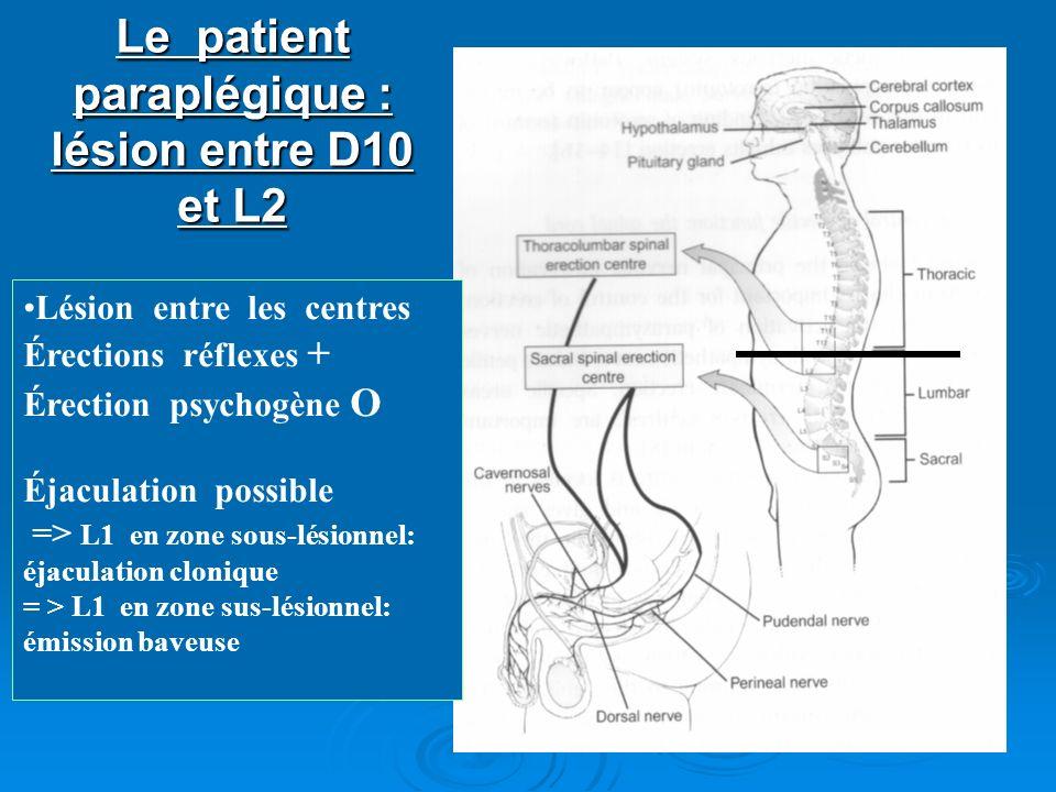 Le patient paraplégique : lésion entre D10 et L2