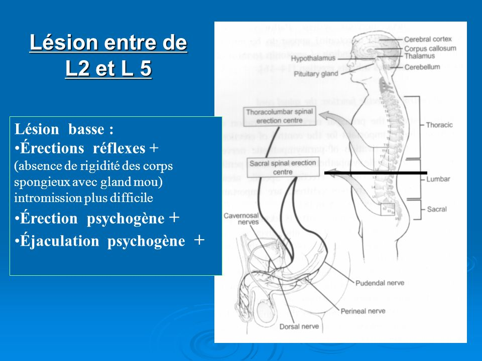Lésion entre de L2 et L 5 Lésion basse : Érections réflexes +