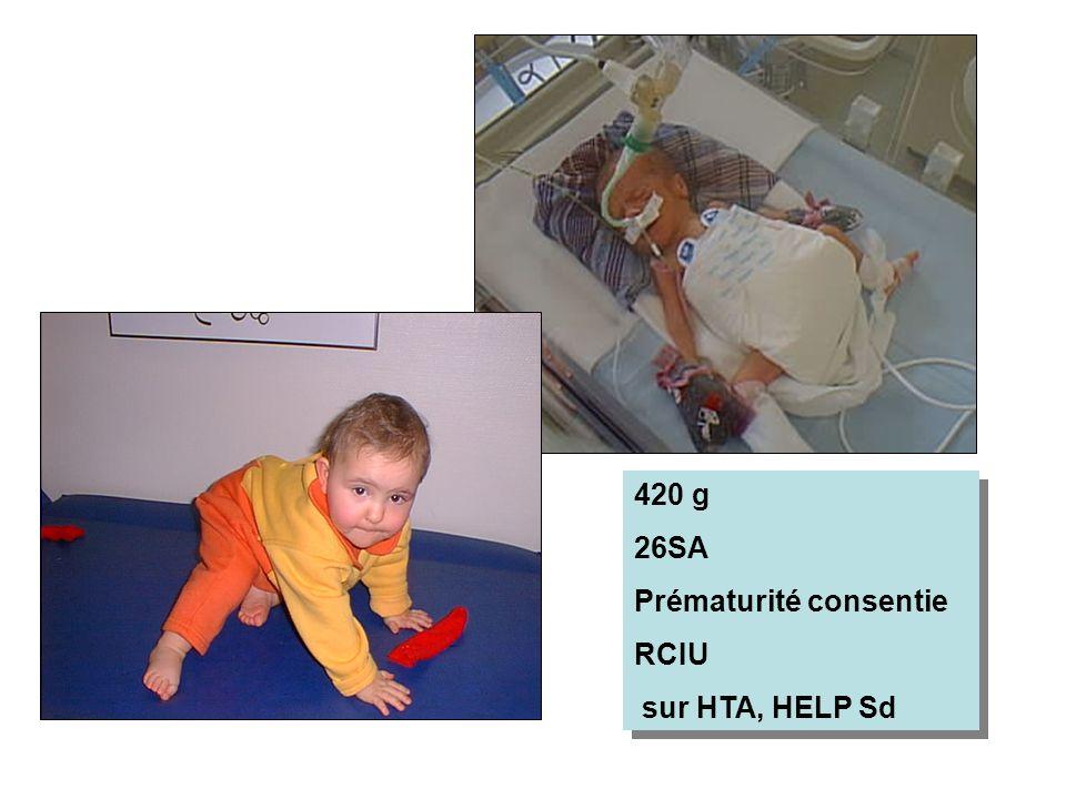 420 g 26SA Prématurité consentie RCIU sur HTA, HELP Sd