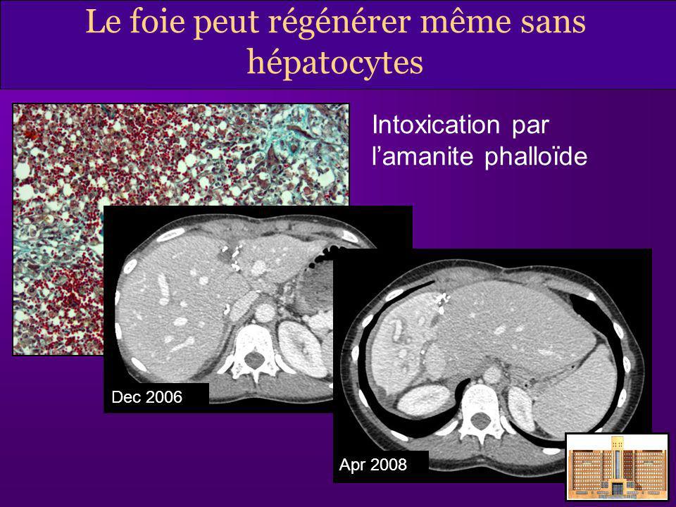 Le foie peut régénérer même sans hépatocytes