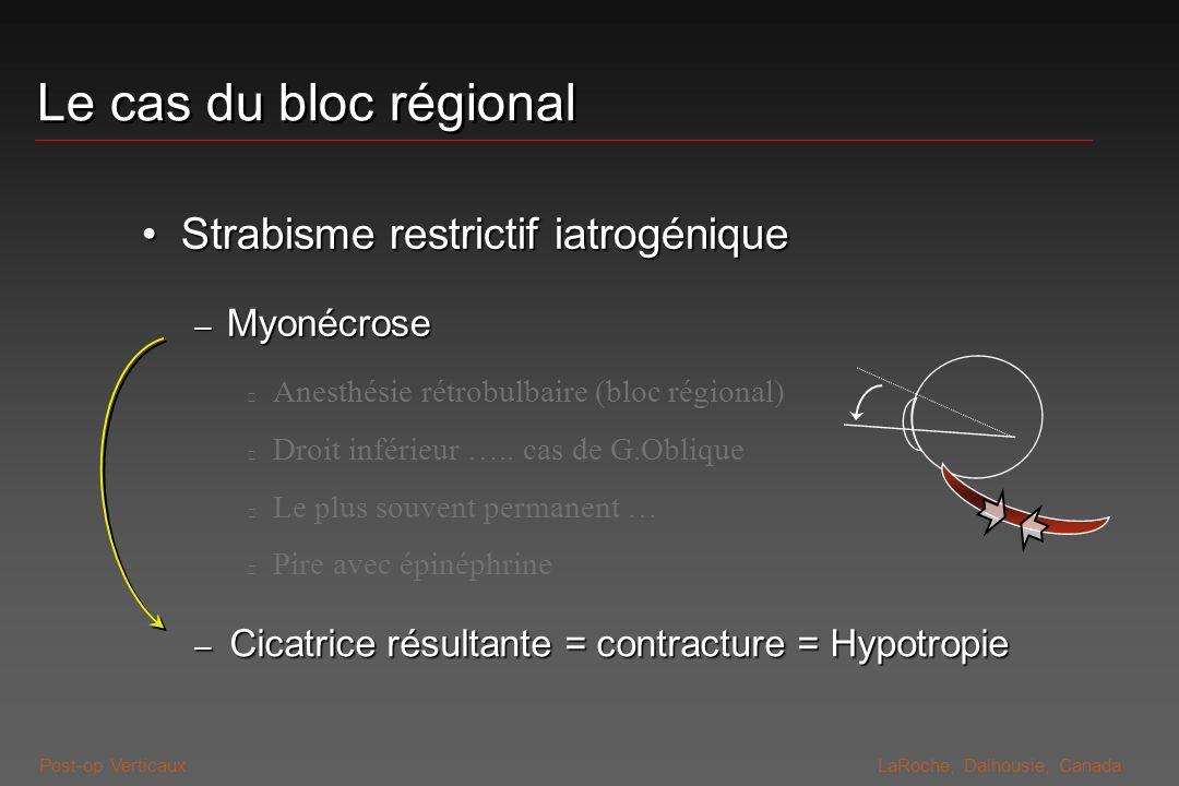 Le cas du bloc régional Strabisme restrictif iatrogénique Myonécrose