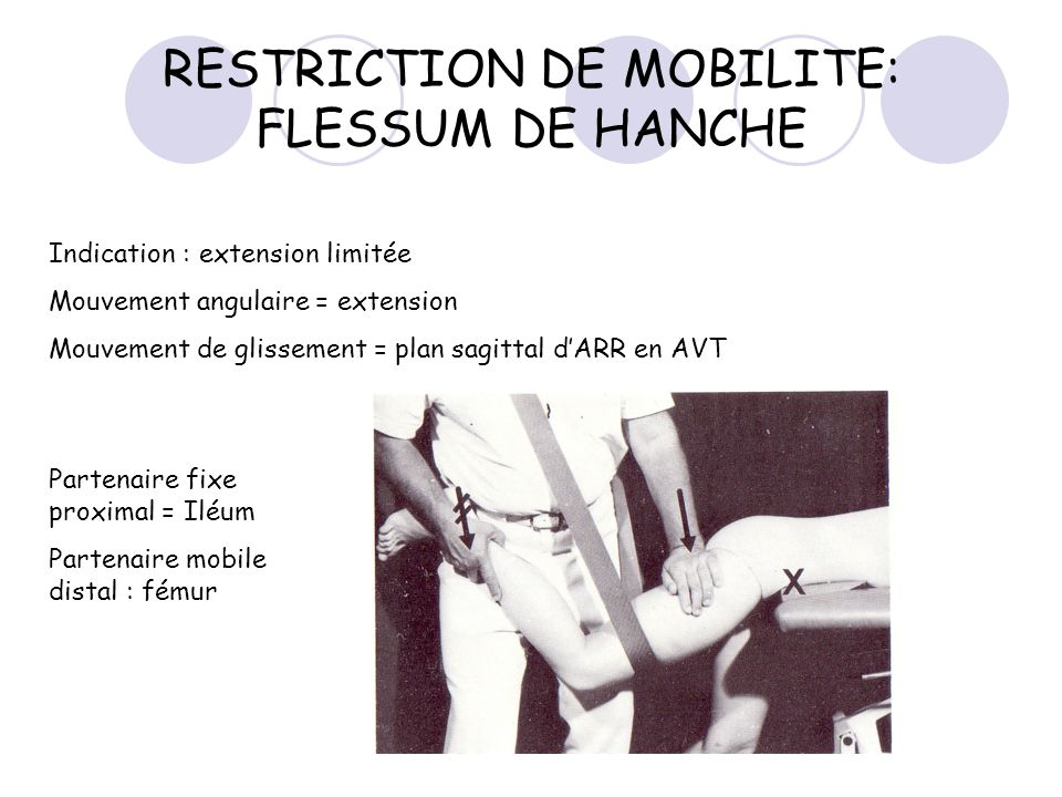 RESTRICTION DE MOBILITE: FLESSUM DE HANCHE