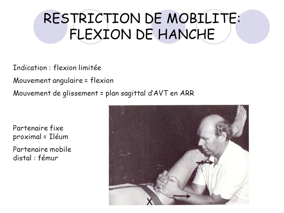 RESTRICTION DE MOBILITE: FLEXION DE HANCHE