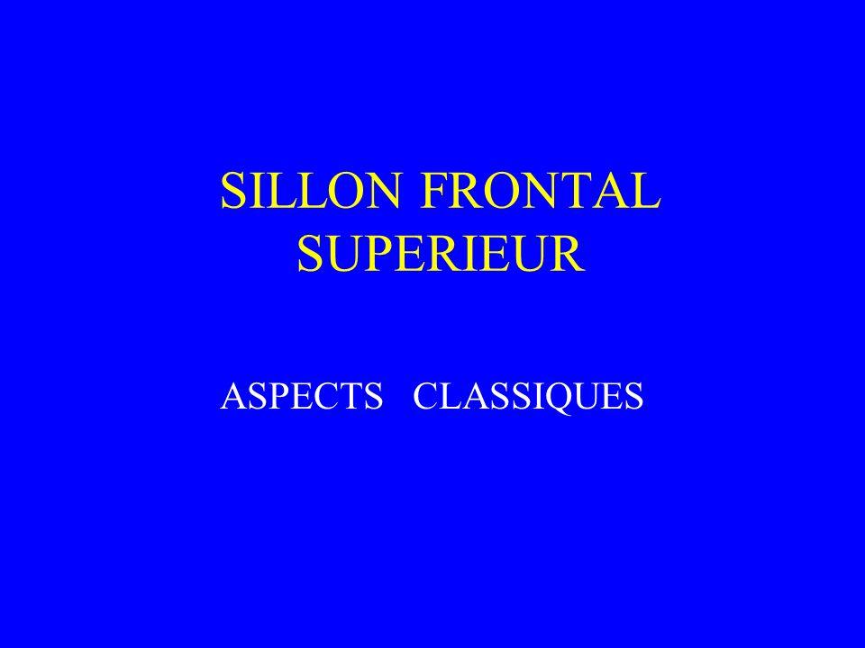 SILLON FRONTAL SUPERIEUR