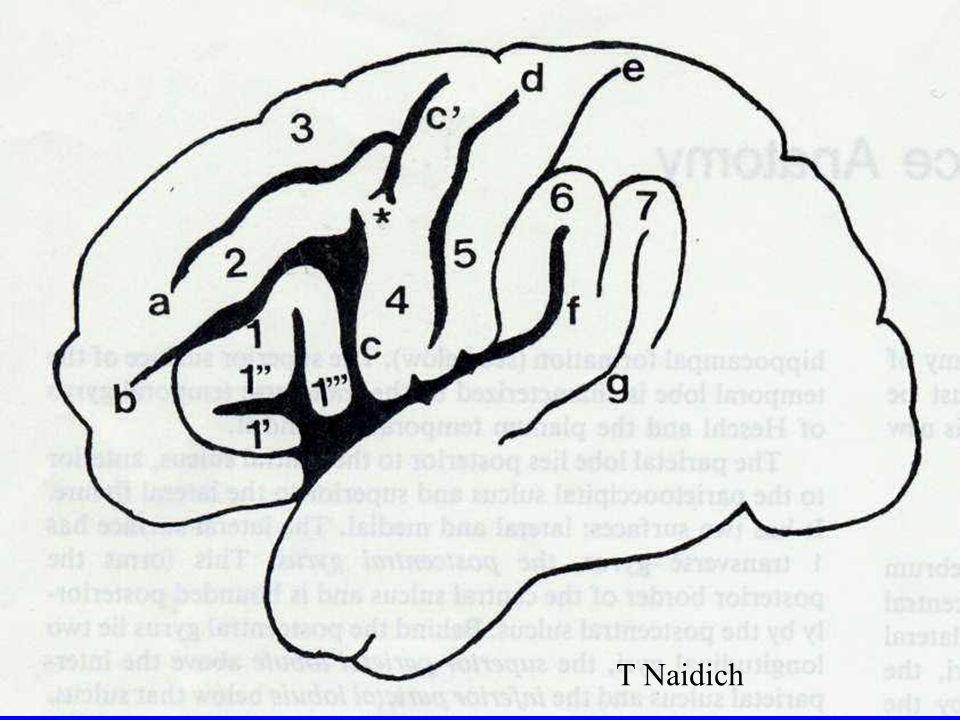 T Naidich