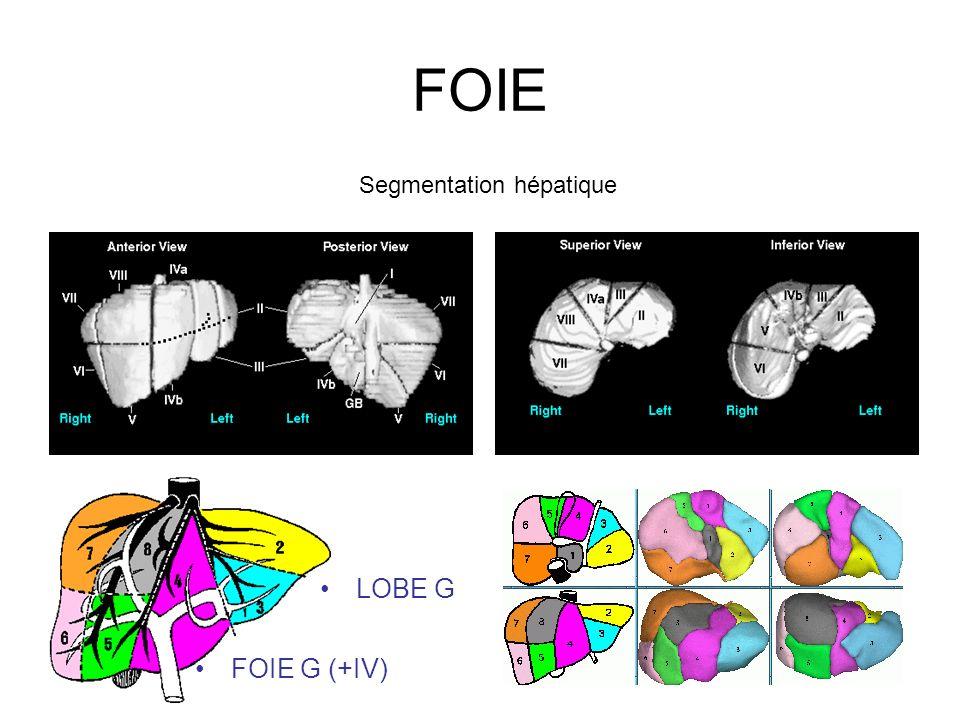 FOIE Segmentation hépatique LOBE G FOIE G (+IV)