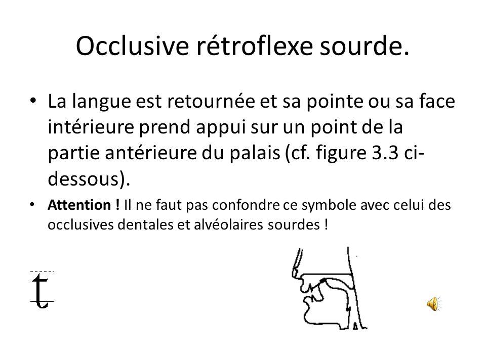 Occlusive rétroflexe sourde.