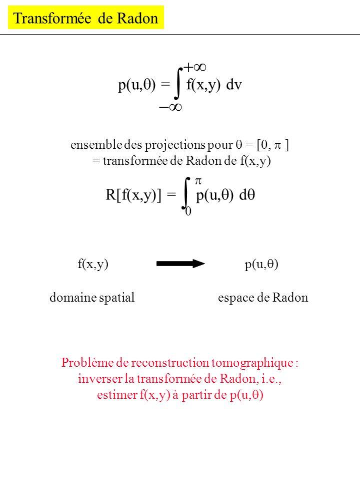    - Transformée de Radon p(u,) = f(x,y) dv