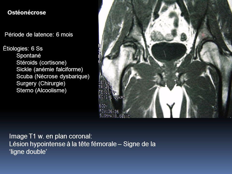 3/31/2017 Ostéonécrose. Période de latence: 6 mois. Étiologies: 6 Ss. Spontané. Stéroids (cortisone)