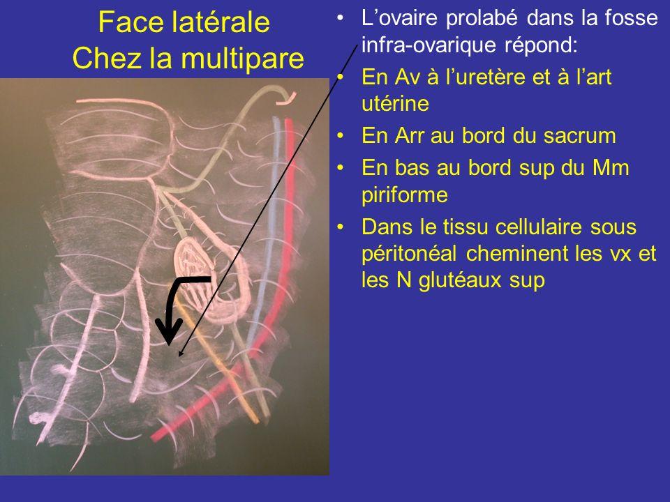 Face latérale Chez la multipare