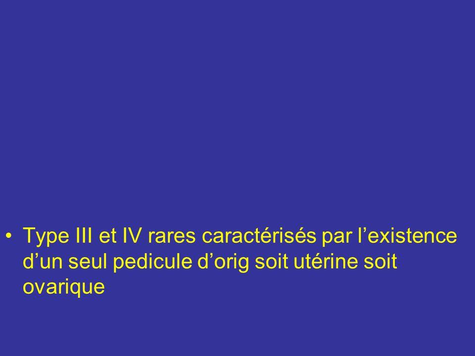 Type III et IV rares caractérisés par l'existence d'un seul pedicule d'orig soit utérine soit ovarique
