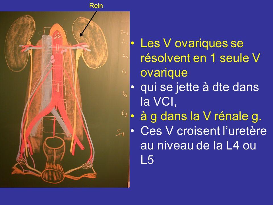 Les V ovariques se résolvent en 1 seule V ovarique