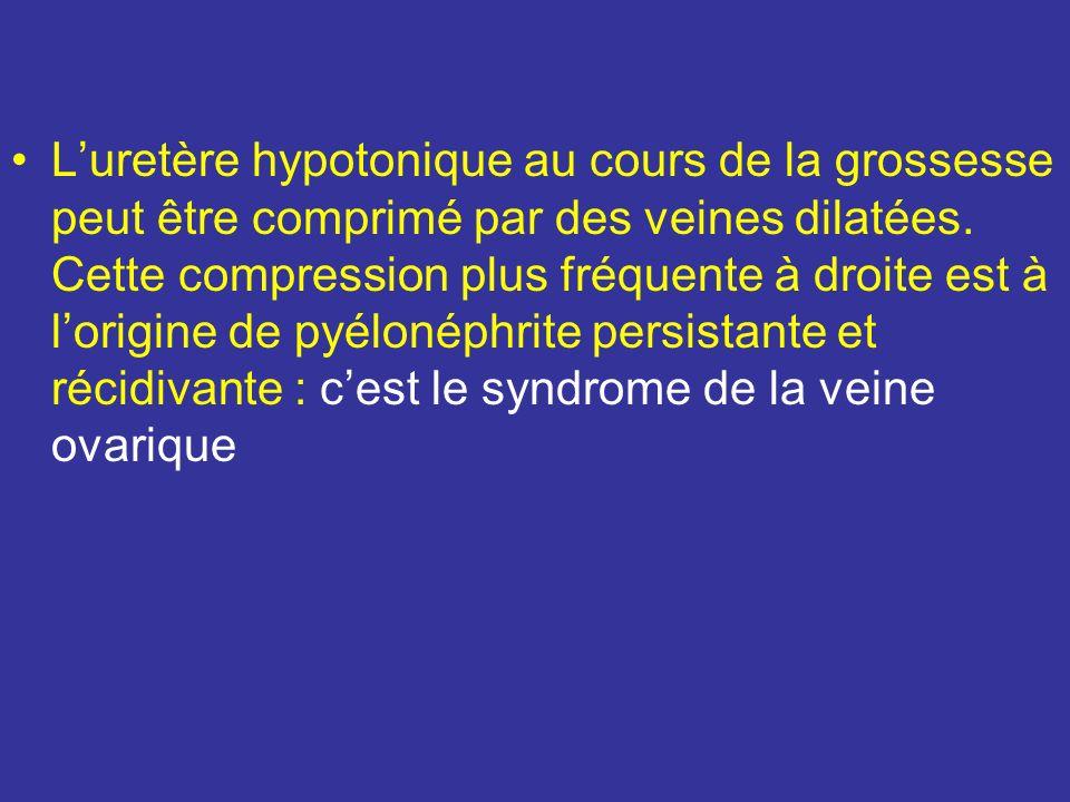 L'uretère hypotonique au cours de la grossesse peut être comprimé par des veines dilatées.