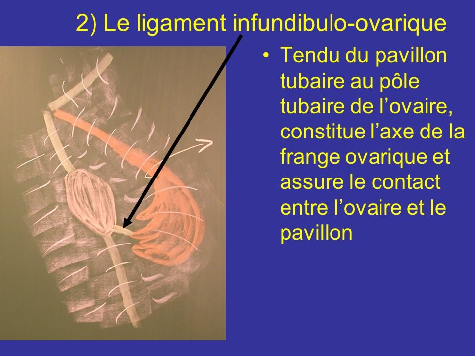 2) Le ligament infundibulo-ovarique