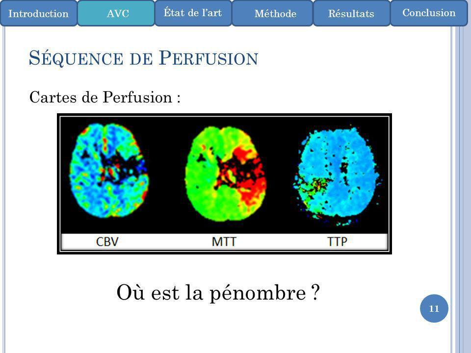 Où est la pénombre Séquence de Perfusion Cartes de Perfusion :