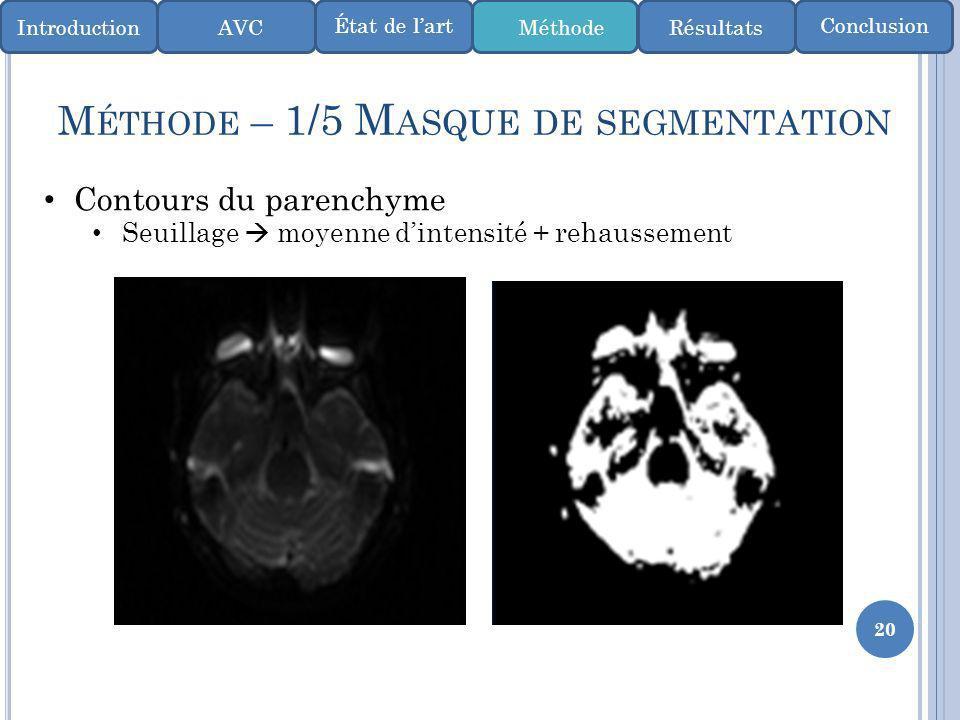 Méthode – 1/5 Masque de segmentation