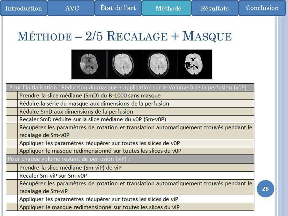 Méthode – 2/5 Recalage + Masque