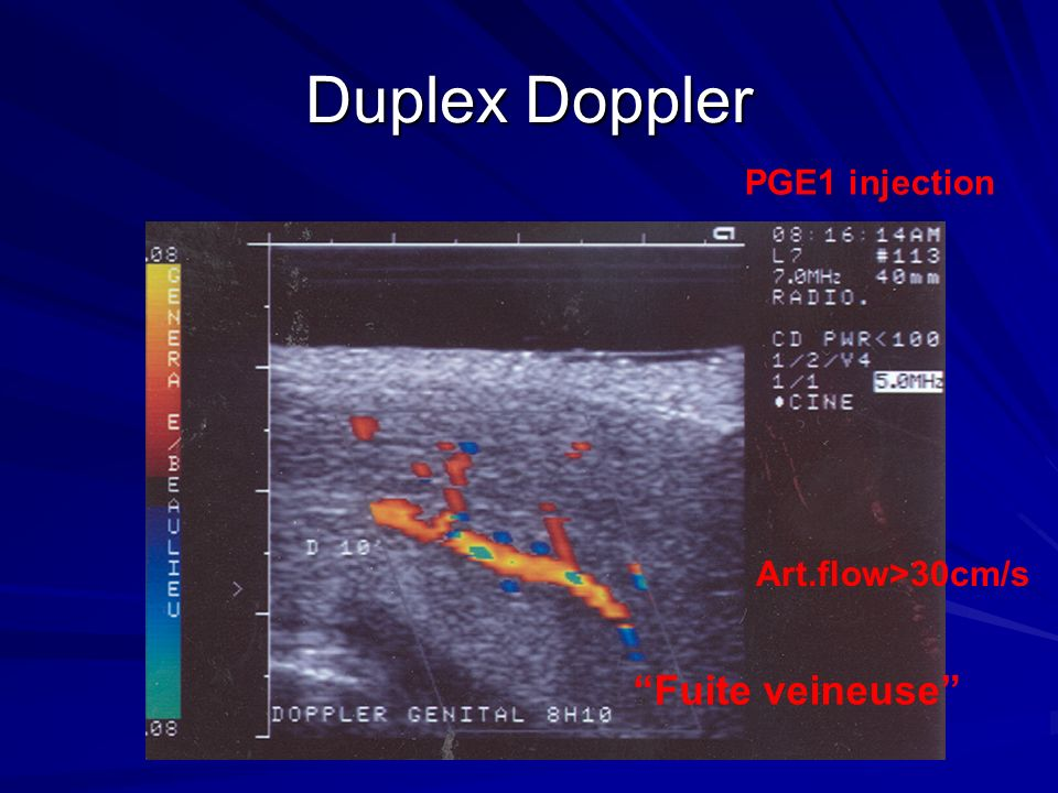 Duplex Doppler PGE1 injection Art.flow>30cm/s Fuite veineuse
