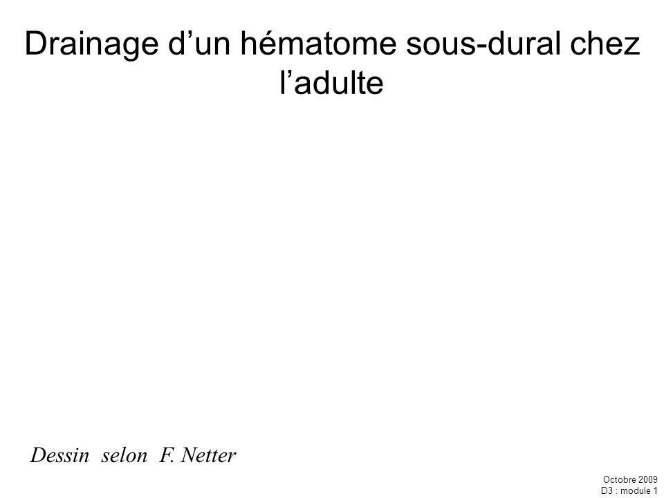 Drainage d'un hématome sous-dural chez l'adulte