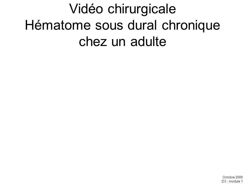 Vidéo chirurgicale Hématome sous dural chronique chez un adulte