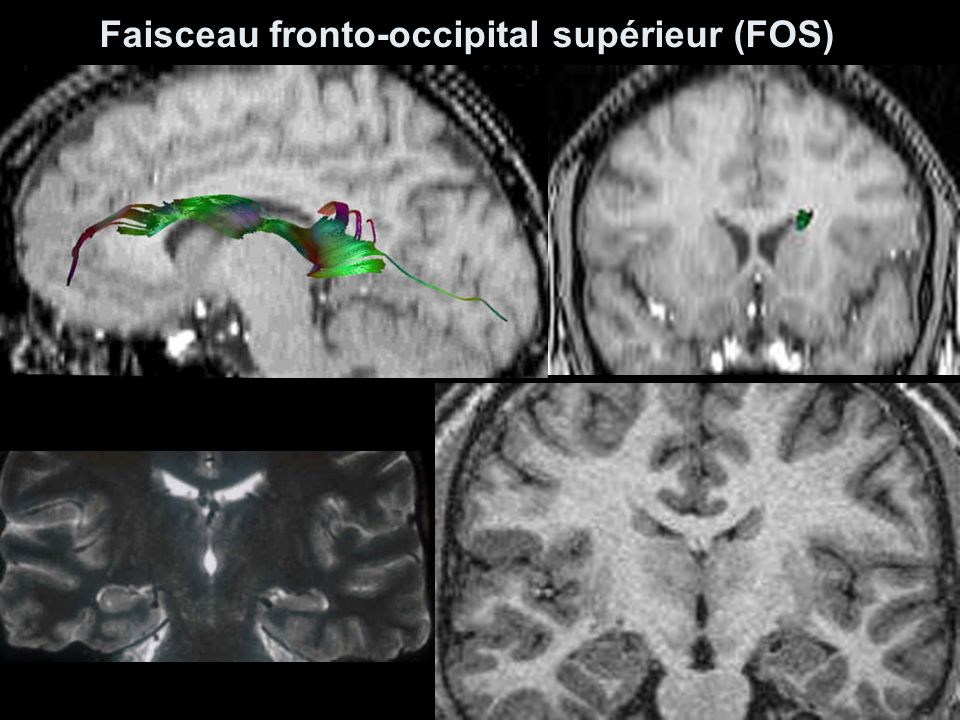 Faisceau fronto-occipital supérieur (FOS)