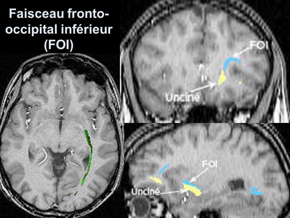Faisceau fronto-occipital inférieur (FOI)