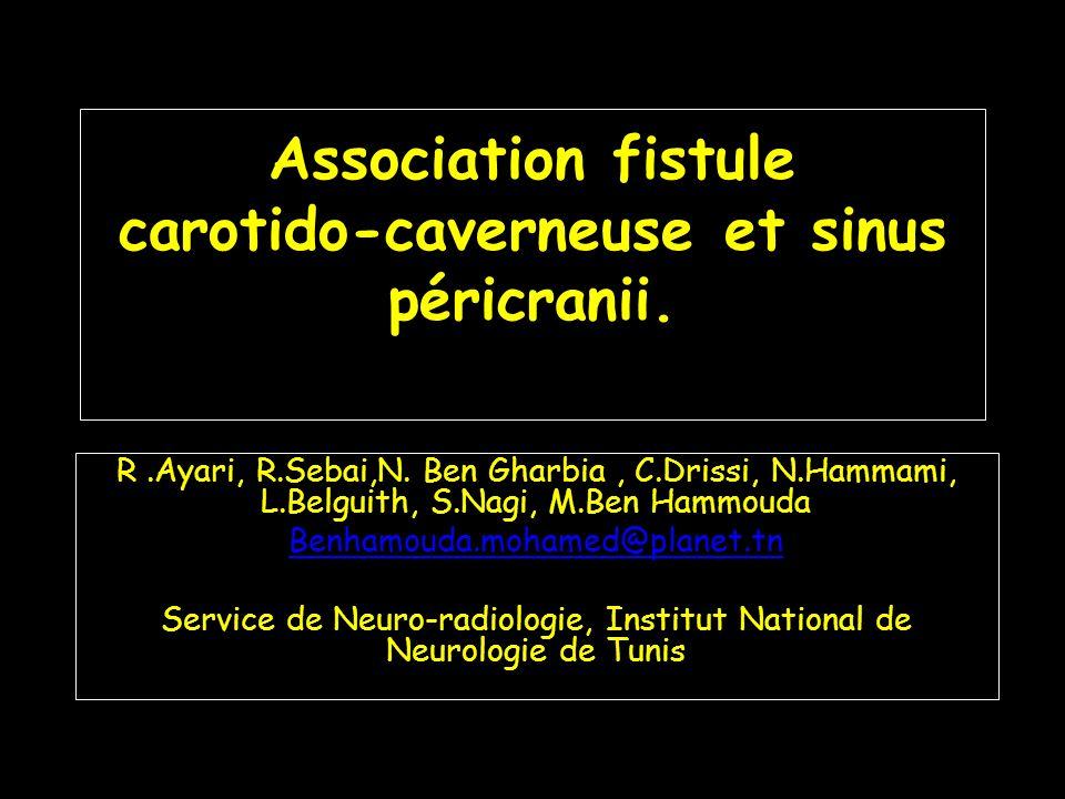 Association fistule carotido-caverneuse et sinus péricranii.