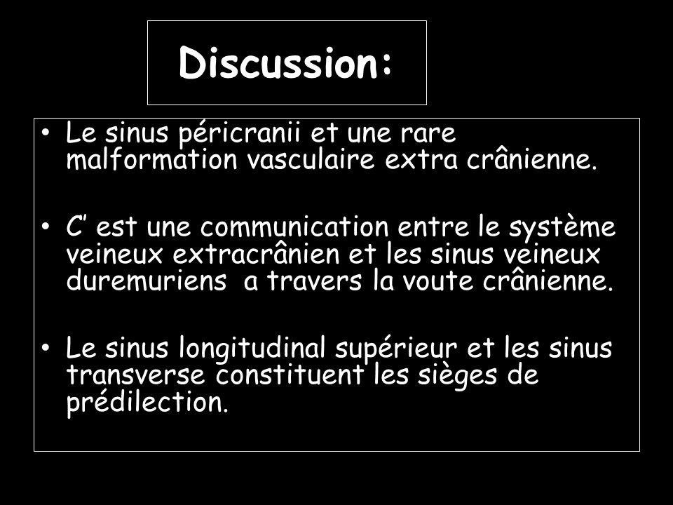 Discussion: Le sinus péricranii et une rare malformation vasculaire extra crânienne.