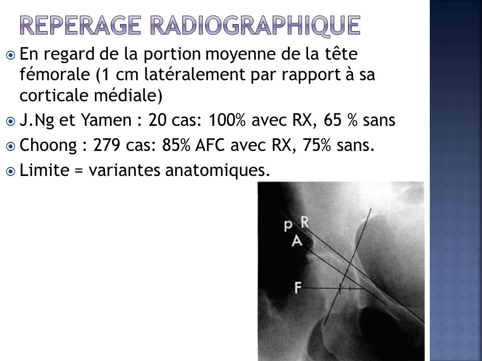 Reperage radiographique
