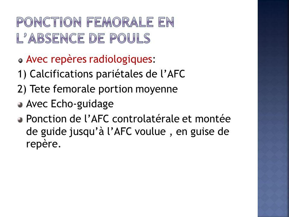 Ponction femorale en l'absence de pouls
