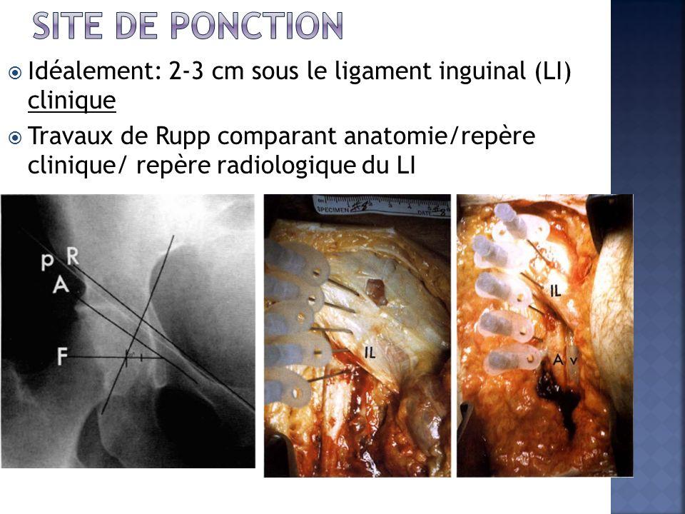 SITe de ponction Idéalement: 2-3 cm sous le ligament inguinal (LI) clinique.